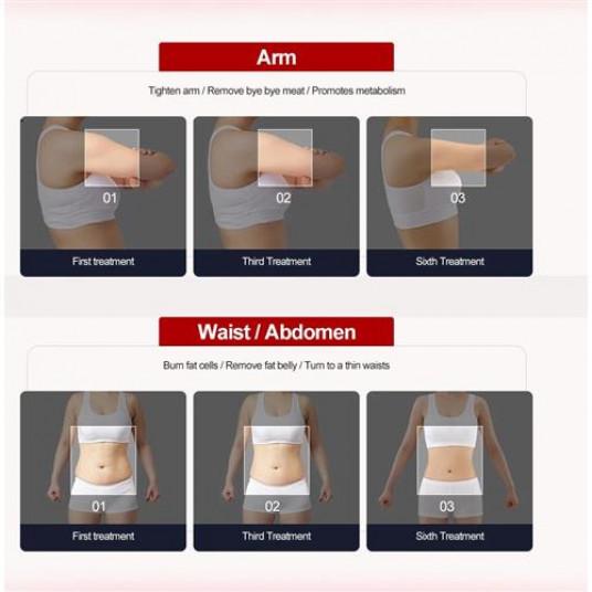 Canistre de masaj vacuum. Încercați o nouă metodă de pierdere în greutate